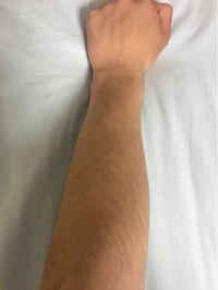 高校3年生です。腕毛が濃いのですが、剃った方がいいですか?