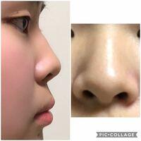 団子鼻、低い鼻、あぐら鼻、豚鼻、鷲鼻のうち私はどの形の鼻をしてい ...