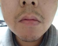 5日間髭を伸ばしたのですがこんな生えかたです。口ひげは真ん中は無くて、口のわきは左右違い、あごはこれで良いです。ほほもまだらに生えますが、髭ってこんな感じですか?毛根が少ないですか?