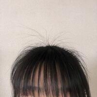 髪を縛ると頭全体から短い髪がすごい出てくるのですが、これって普通ですか? 原因が何かわかる方がいたらそれもお願いします。