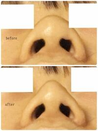 鼻尖形成でこれくらいの変化を求めることは可能でしょうか?写真は私の鼻で、自分で加工して術後の例として作ってみました。自分は軟膏が大きいのか、それとも単に皮膚が厚いのかわからないです。皮膚が厚いと効果が でにくいとききました。自分で触ってわかったりしますか?