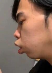 この人は横顔があまりかっこよくないと思うのですが、どこを整形すればイケメンになるとも思いますか?