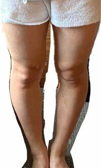 身長157cm、体重52㎏~53㎏です。上半身は細身なのですが、下半身が太いです。 ①この足を見てどう思いますか? ②体重を落とす方法を教えてください。 ③筋肉(前ももの張りとふくらはぎがししゃも足です。)筋肉を...