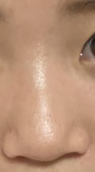 この変な鼻ノーズシャドーとかですこしでもマシになりますか?この鼻に合う入れかたとか教えて欲しいです ♀️