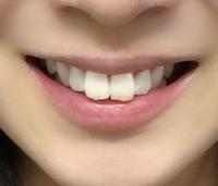 高校3年生女子です。 私は昔から大きい前歯がコンプレックスで、出っ歯といじられてきて思い切り笑えなくなりました。高校を卒業したら矯正したいと思っています。ネットで女性の前歯の大きさ は8.5㎜前後と書か...