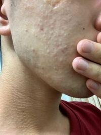 肌について質問です。大学生です。 頬から口元にかけて白いブツブツが出来ているのですが、これは白ニキビですか? 潰すと白い水分のない固形物(脂の塊?)が出てきます。あと臭います。
