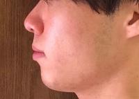 ゴボ口改善 20代前半男性 見苦しい写真ですみません。  自分は昔から口元のもっこり感がコンプレックスです。正面からみると上顎が長い上に上唇が薄く面長なため抜けた顔になってしまいます 。 前歯は若干出...