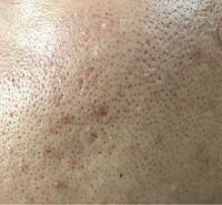 18歳の男です。 頬の肌が写真のようにボコボコなのですが これはメラニン毛穴、黒ずみ毛穴、開き毛穴 たるみ毛穴のどれですか? また効果的な洗顔料や化粧水を教えて欲しいです。
