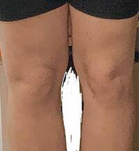 ダイエットしてるのですが 足の太さが明らかに違います。 普段片方に体重かけたり、とかが原因なのでしょうか?