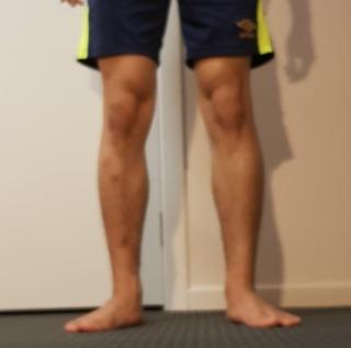 外転,骨格,蟹股,ひざ下,くるぶし,バランス,内側