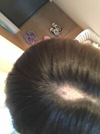 髪の毛を抜きすぎてこのように禿げてしまいました… どうすれば抜かないようになりますか? 22歳女です 中学のころいじめられていたのがきっかけで髪の毛を抜くようになりました 中学、高校、大学、そして社会人と...