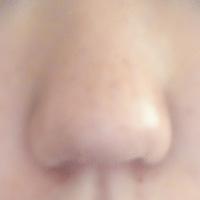 これは 団子鼻ですか?豚鼻ですか? 鼻筋を倒したいのですが、綺麗な鼻にするにはなんの美容整形がいいでしょうか?  鼻がすごくコンプレックスです。  またこんな鼻だとどんな印象を持つ でしょうか。
