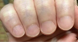 ない 爪 半月 【症例画像も】深爪・爪噛みなどによる爪の変形・治療法 [皮膚・爪・髪の病気]
