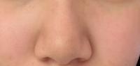 鼻がコンプレックスです…… ( • ˍ • )  (※写真あります) この鼻は団子鼻でしょうか?それともにんにく鼻ですか??