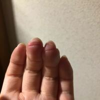 ギター初心者です。弦をおさえる指の位置ってここで良いのでしょうか?