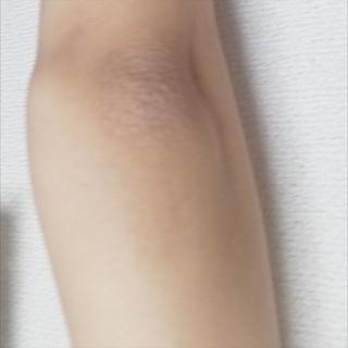 肘 が 黒い