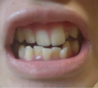 耀 平野 歯並び 紫