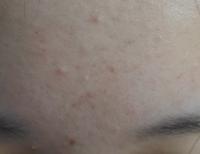 おでこのニキビやニキビ跡を治す市販のスキンケア用品を教えてください。高1です。 オイリー肌気味だと思います。  頬にはよく見ると小さいブツブツしたモノがあったり、赤いニキビ跡があります。  小さいニキビ...