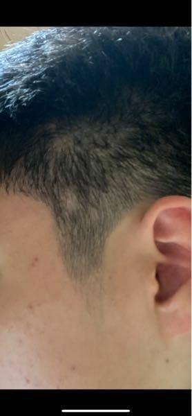 円形脱毛症,もみあげ,反対側,丸いハゲ,皮膚科,限り