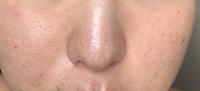 ニキビ跡の赤み、ニキビによる赤ら顔って 一生消えないんですか?画像みたいに顔が赤くて毛穴が開いています
