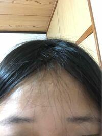 2年前くらいから前髪伸ばし始めて今前髪ないんですけど、おでこに短い毛がパラパラ残ってしまっています。これはなんででしょうか?変なのでなくしたいんですけど、どうしたらいいでしょうか?