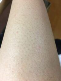 足の毛を剃るとこんな感じで黒いぽつぽつになるんですが、これを治す方法はありますか???