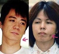 北九州監禁事件の松永太の首のV字と、緒方純子の頬の点は何ですか?