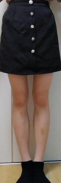 脚太いですかね、、、?拒食症克服中なんですが太った気がしていてもたってもいられません。ふくらはぎの内側がずっとポコってなってるのが気になります。ふくらはぎ細くしたいです。拒食症は治 したいけど脚出してても笑われないくらいの細さになりたいです。。。わがままですみません。