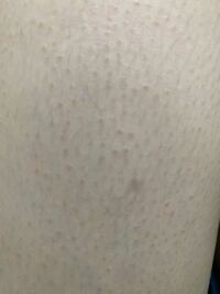 太ももの白いプツプツについて 写真の状態が太もも全体に広がってます 前までは目立つことなくサラッとしていたのですが最近家庭用脱毛器で一回脱毛したあとこんな感じになりました。 これは毛孔性苔癬にあたるの...