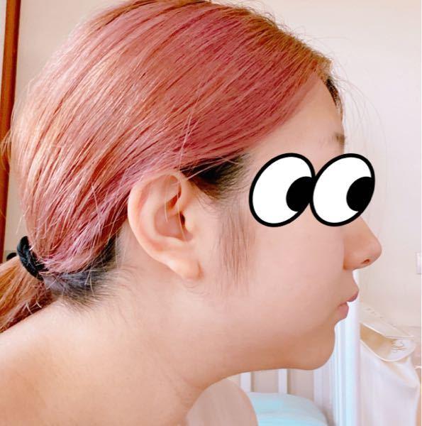 口ゴボについて これって口ゴボでしょうか 調べた画像では 鼻より上唇の先が出てるようなものばかりで 見比べると鼻が高いからなのか 良くわかりませんでした よろしくお願いします。