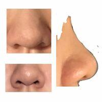 鼻の整形について。見苦しい写真失礼します。鼻が大きく、また広がっていて、鼻根の高さはないのに鼻先の肉が厚くすごく気持ち悪いんです。ほんとに悩んでて、大きいままでも高くして鼻筋が欲しいです… どんな整形をしたらいいかご意見を聞きたいです。  (左上・正面、左下・下から、右・横から)