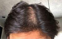 はじめまして。 髪型(ヘアースタイル)についてアドバイスをお願いします  性別 男 年齢 44歳 比較的小顔 毛質 柔らかく細い  子供の頃から、髪質は赤ちゃん毛で柔らかく、そして、細いのでヘアーセットしても、すぐにペシャンコとなります。 また、ヘアージェルでセットしても髪が細いのでボリューム感がなくしっくりきません。  なので、長年センター分けでサラサラヘアースタイルでいましまが、遺伝と加...