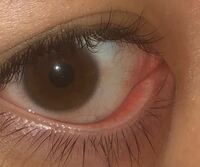 目頭 腫れる