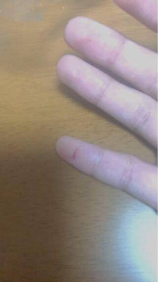 切っ 止血 指 た