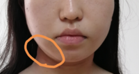湘南 美容 外科 糸 リフト