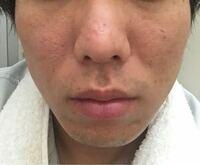 肌の汚さレベル10のうちいくつくらいですか? コンプレックスです。