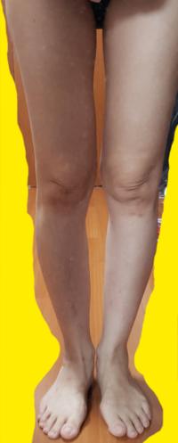 この脚は、X脚?O脚? どちらでしょうか?膝下O脚というやつでしょうか? 脚の形が悪く、太くて、膝の内側に骨や脂肪が出ているような感じです。 直し方を調べているのですがXとOでは内容が違うしどのような事を...