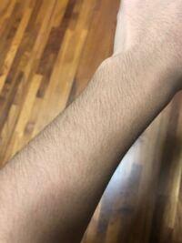 中学生です、この腕毛って濃い方ですか?