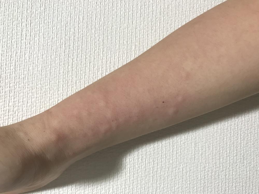 完治 コリン性蕁麻疹