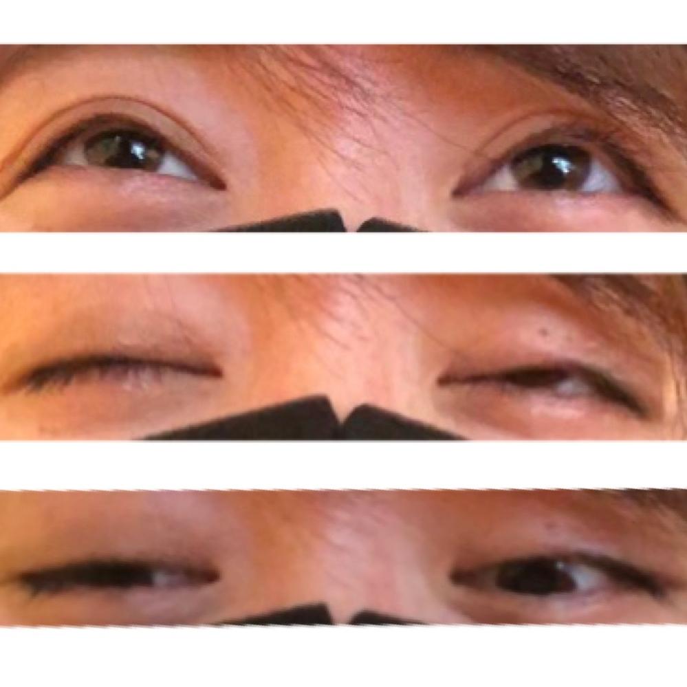 私は小さい頃に目いぼ(ものもらい)ができたようで左目に傷痕?のようなものが残っています。 この傷痕のおかげで瞼が少し引っ張られていて、目の形も少し右目と変わっており目を閉じることが難 しいです。 これ