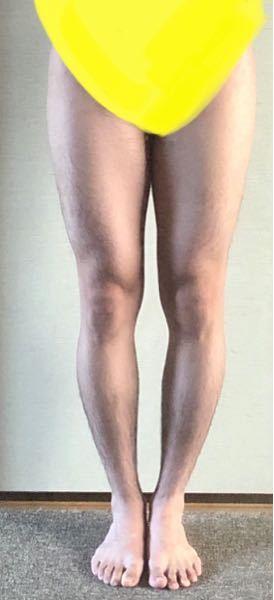 O脚ですか?