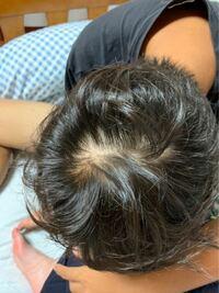 16歳男子です。若年性脱毛症の疑いはありますか