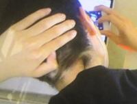 首あたりの変な位置に髪が生えているのですが、原因ってなんですか?昔からです。