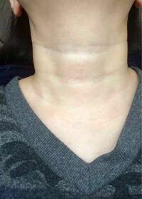 質問です。 写真の生まれつき?の首の横線の様なものは どうやったら消えますか?  完全に消えなくても薄くなる方法はありますか…?  首曲げてる時に赤ちゃんみたいな首って言われて…笑