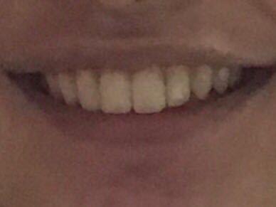 歯長いですか?