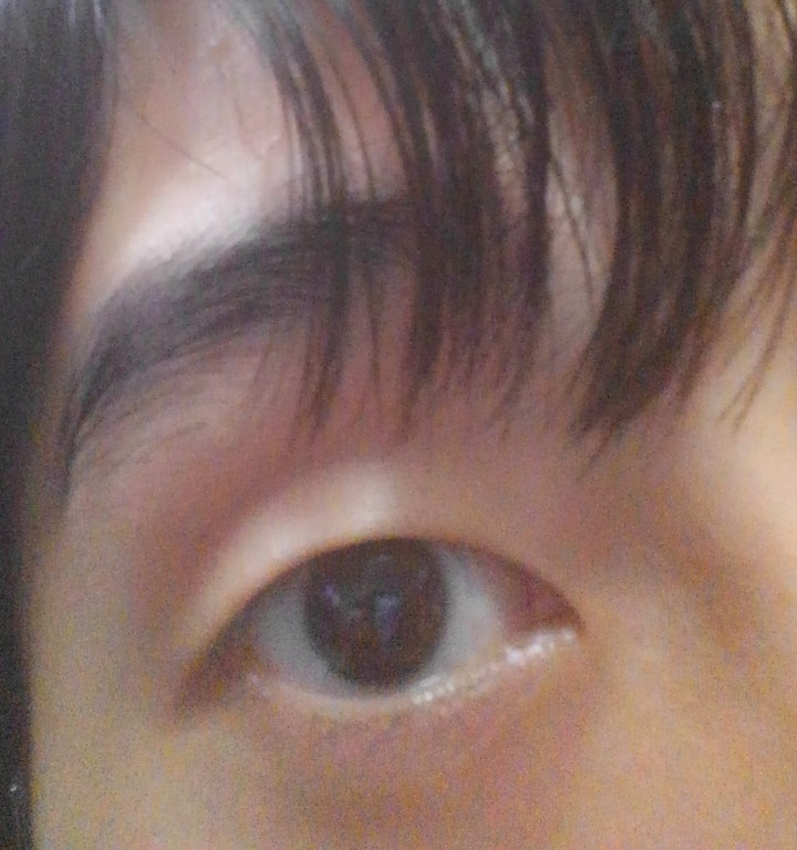 男です。写真あり閲覧注意。整形を考えています。 目が小さく眉から目の距離も離れてて顔も面長なので間抜けに見えるのが嫌で眼瞼下垂手術と二重の埋没をしようと考えています。 それと目尻の切開も考えてい...