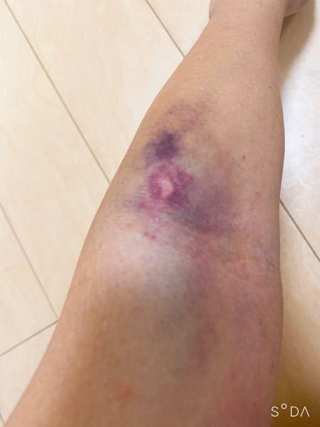 昨日、前没の手術のときに 点滴を失敗されたところがこんなに内出血してます、、どれくらいで治りますか、、?