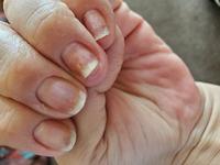 ジェルネイルでオフする際に アセトンを使用したら アセトンでアレルギーを起こしてしまい 爪甲剥離を起こしてしまいました。 その後はネイルもせず、ネイルオイルや ハンドクリーム等で保湿を 怠らないようにし...