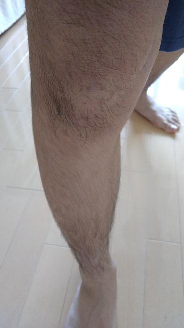 高二男子です 足の毛がこのようにたくさん生えています 手も同様です やはり、切った方がいいのでしょうか また、切る場合はどうしたらいいか教えて欲しいです 親には出来れば言いたくないのですが…