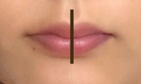 口元の左右差を改善する方法について  鏡で見る分にはそこまで気にならないのですが、写真を撮ると特に気になります。 添付写真だと拡大しすぎてわかりにくいようでしたらすみませんが、向かって左側のほうが長く見えます…。 また右側は肉も垂れているのか、笑うと右側にだけほうれい線が出て普段も右側のほうが口角が下がり気味になってしまっています。  垂れていない左側に噛み癖があるのかなと思い日常...